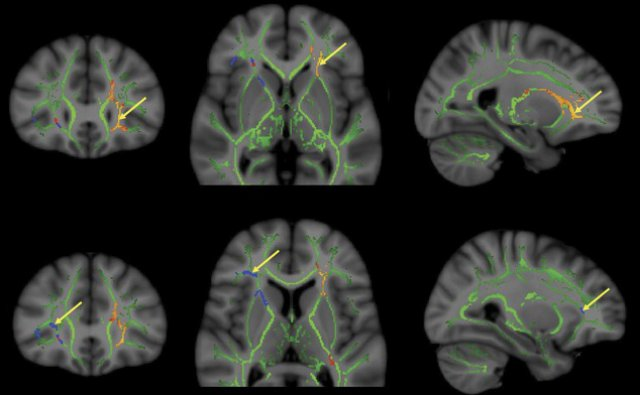 Electric Shocks To Brain Accelerate Rpa Pilot Learning